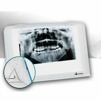 HISHINE® Négatoscope radiographie dentaire LUNA