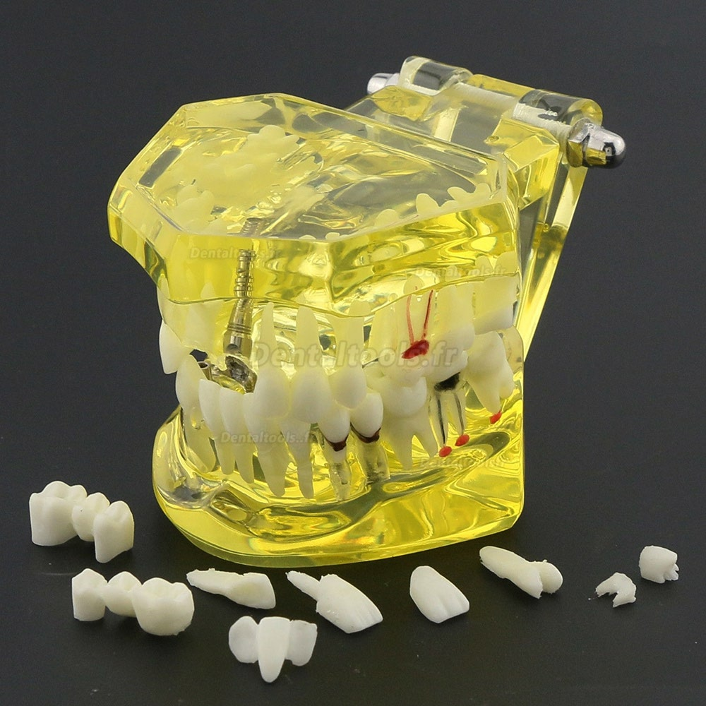 Modèle de dents dentaires Etude Teach Etude d'implantation orale Restauration et pathologie 2001 Jaune