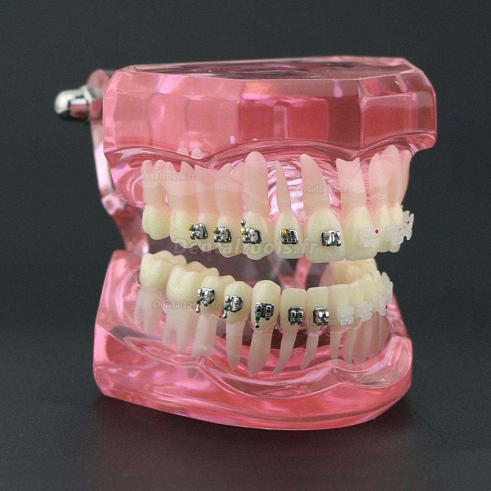 Vente de Modèle de Dents Dentaire Orthodontique Bracket